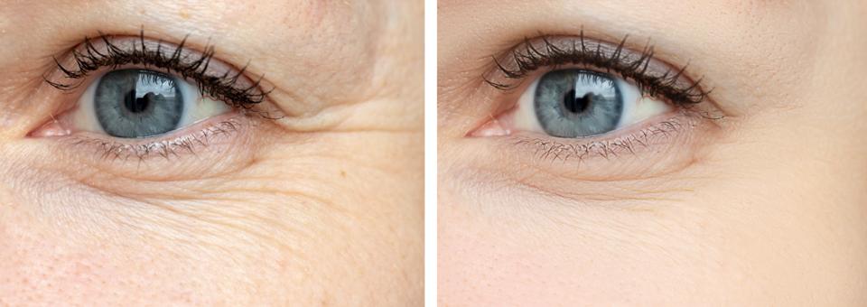 12-Minute Wrinkle Reducer